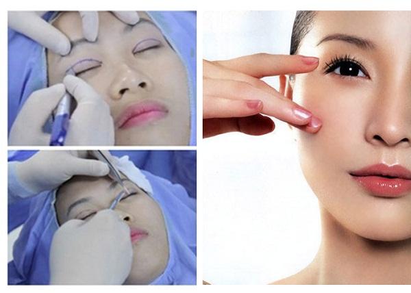 Bác sĩ nào cắt mí mắt đẹp được nhiều khách hàng biết đến? 1