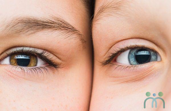 Bọng mắt là gì ?