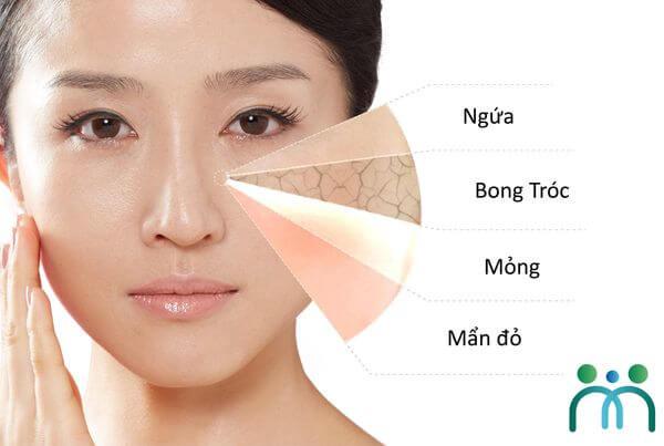 Da khô nhạy cảm có nhiều biểu hiện khác nhau